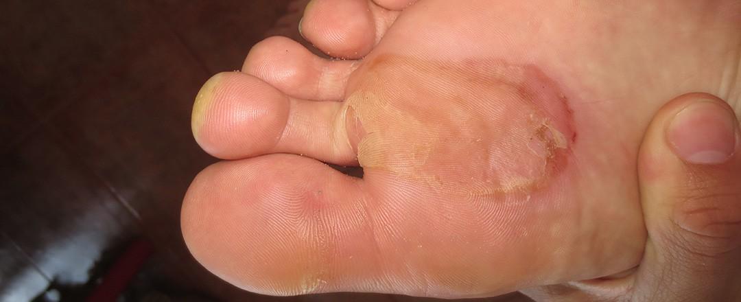 Tag 11 – Kaputte Füße